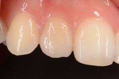 セラミックス治療|審美歯科