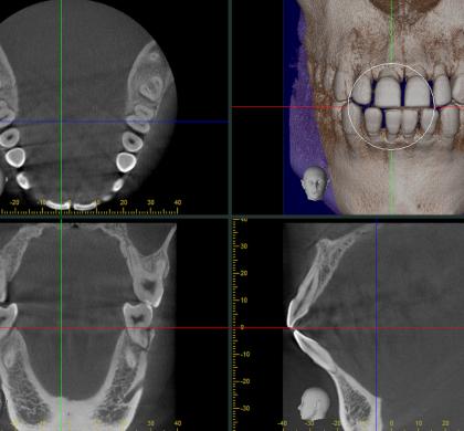 歯科治療の見える化