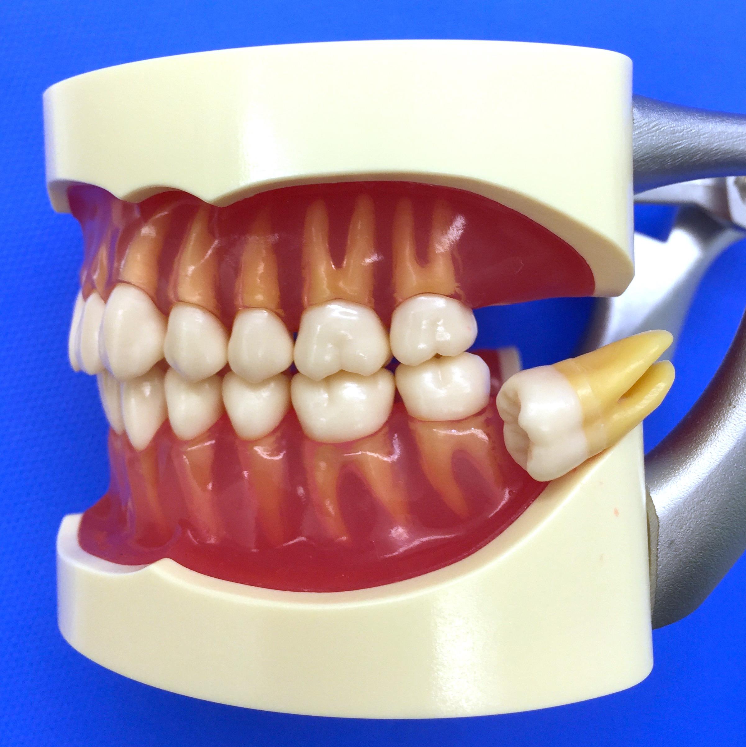 親知らずの抜歯|口腔外科