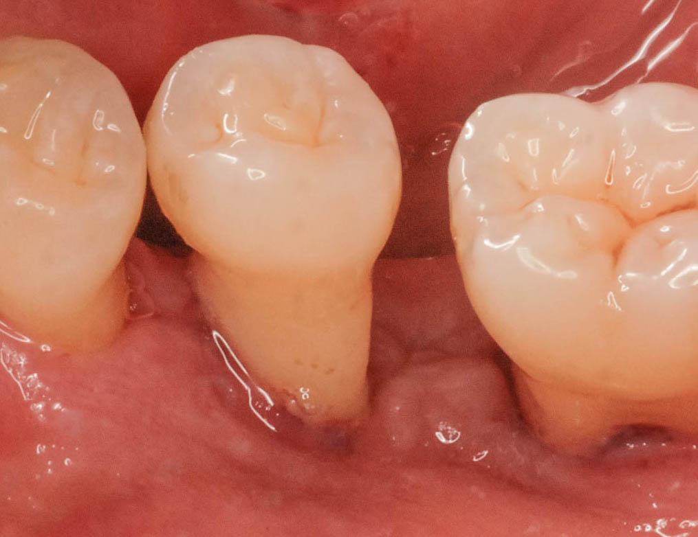 歯ぐきが腫れた!歯肉炎?歯周炎?|歯周病治療