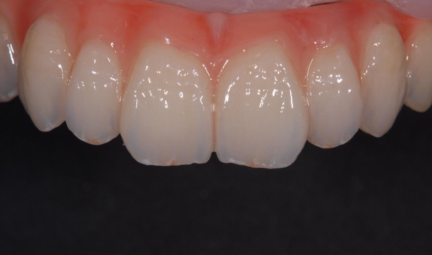 人工の歯ぐき